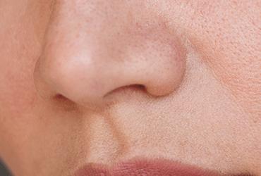 Natuurlijke oplossingen voor een droge huid